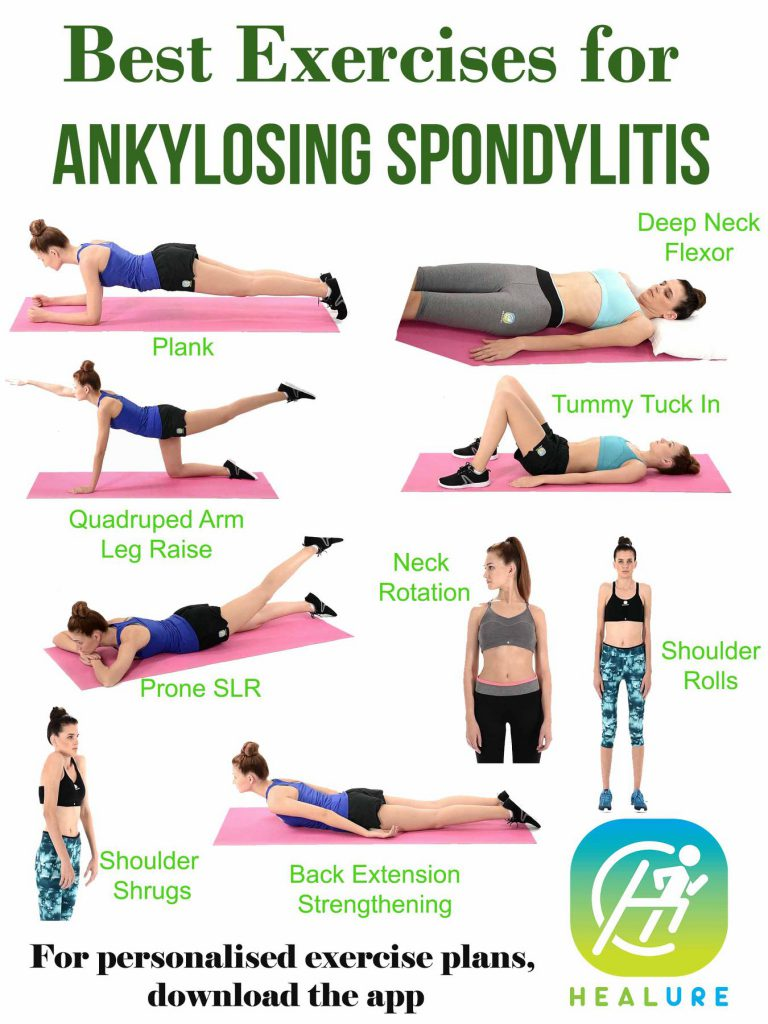 Best Exercises For Ankylosing spondylitis