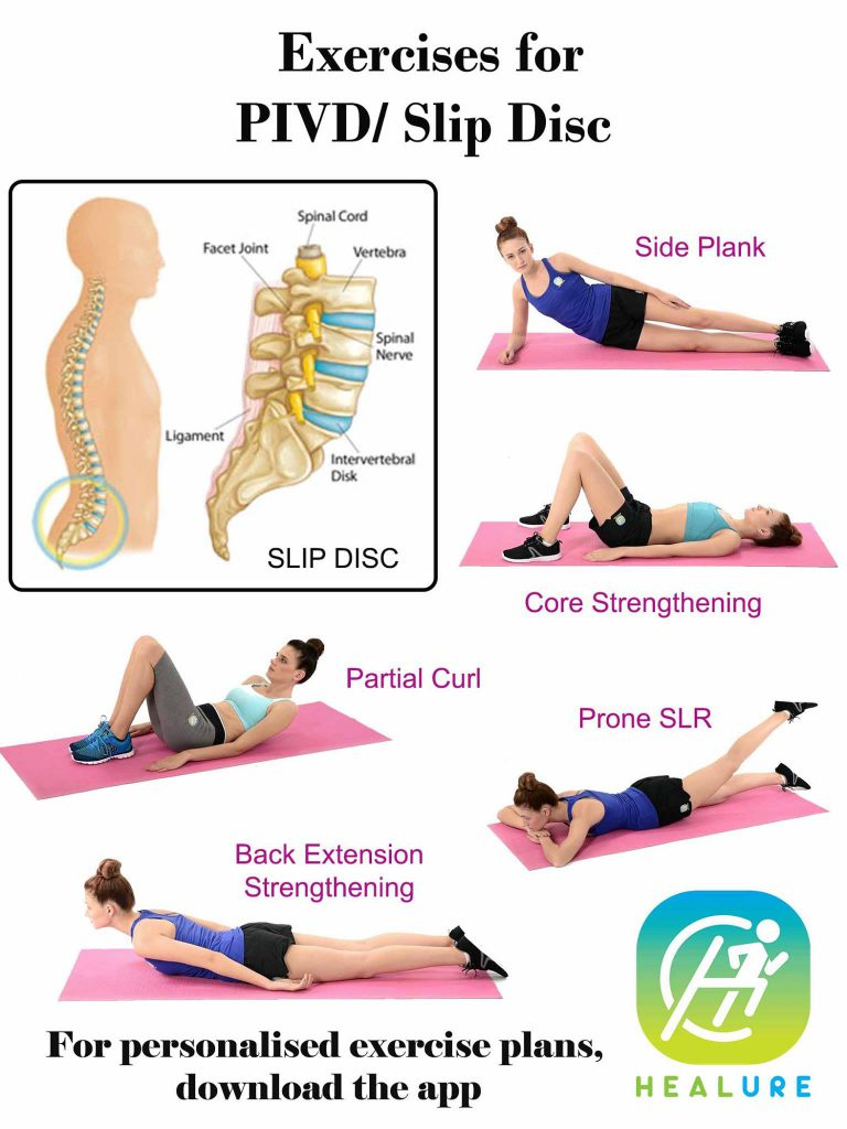 Exercises for PIVD/ Slip Disc